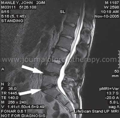 retrolisthesis lumbar spine series Retrolisthesis, spondylolisthesis back pain detailed article to help you understand spinal anatomy, lower back pain treatment options betrayal series.