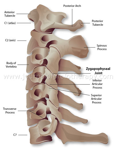 Cervical Spine Injuries Literature Reviews Journal Of Prolotherapy