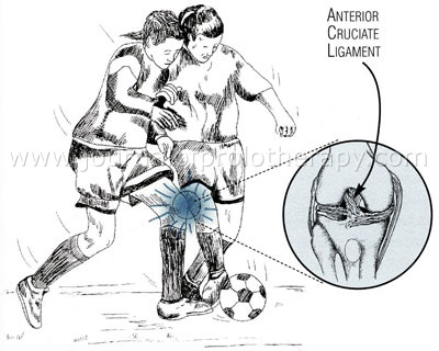 What Is The Hypodermis as well Knee Diagram further Popliteal artery besides Nose as well ProdList Knee Problems C540. on knee ligaments