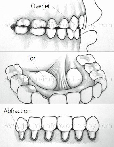 Do tight bottom teeth why my feel Teeth Look