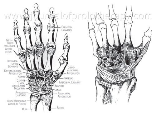 Hand and Wrist Prolotherapy - Journal of Prolotherapy