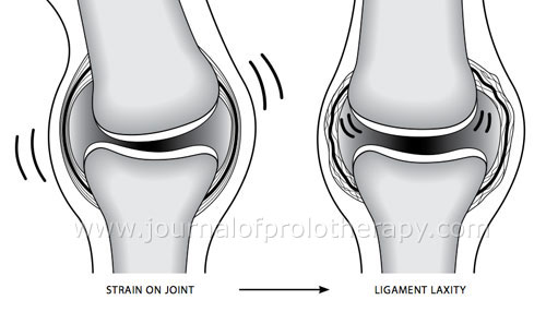 The Ligament Injury Osteoarthritis Connection The Role Of