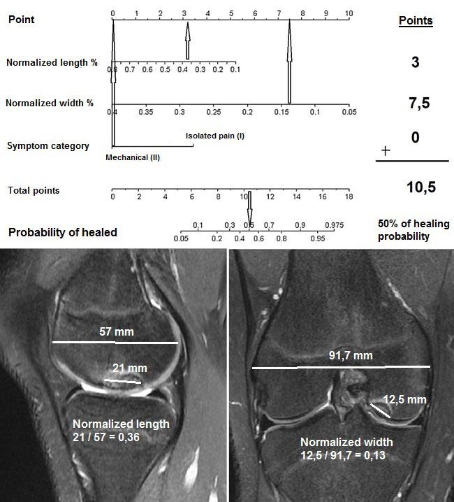 Osteochondritis Dissecans figure-2